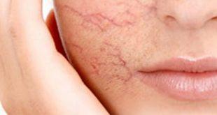 spa trị mụn trắng da